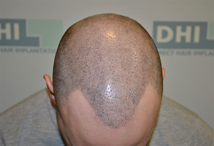 Scalp Micro-Pigmentation (SMP) Training 2