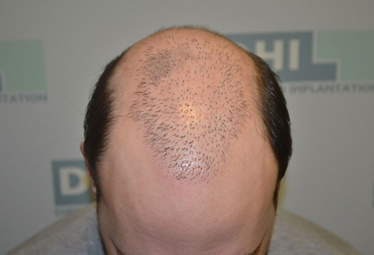 Scalp Micro-Pigmentation (SMP) Training 1