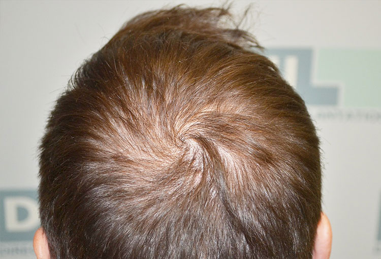 Scalp Micro-Pigmentation (SMP) Training 3